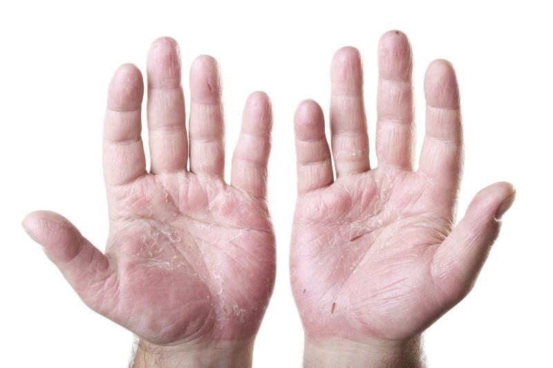 1、冬季气温干燥 冬季气温一般比较低,而且空气很干燥,如果手不注意保养,那么脱皮是一件很常见的事情,大部分孩子出现脱皮是没有注意保养造成的。 2、手出汗没及时处理 冬季穿衣过多,手出汗之后没有及时换,多会出现脱皮现象,有的时候还有点痒。 孩子经常抓挠出现的问题更多,适当保持手干燥很重要,万博足彩app也要经常晾晒,保持干燥。 3、缺乏维生素A 手脱皮由于营养缺乏和维生素A缺乏一定的关系。 维生素A属于脂溶性维生素,对皮肤的表层有保护作用,如果缺乏的话,就会引起皮肤干燥和脱皮等现象。胡萝卜富含维生素A,对皮肤的表层有保护作用。 4、缺乏维生素C 一搬出现在喜欢挑食的人当中,因为身体所需各种营养和元素不均衡。可外用维生素C注射液搽涂患处,每日两次,三天一个疗程。 对皮损的恢复有较好的效果。也可多吃点维生素丰富的水果。 5、接触粗糙东西 如果你长期接触化学制品或粗糙的东西,手脱皮就会经常发生,因为粗糙的东西会导致你手上的水越来越少,时间一长就会有脱皮